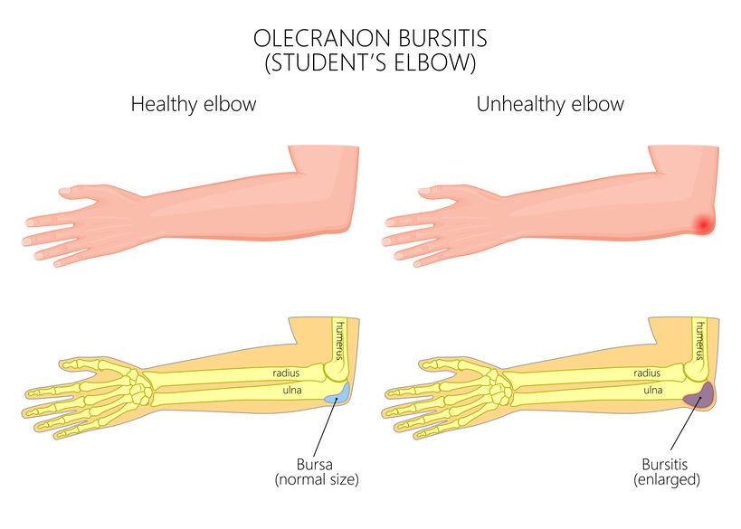 What Exactly Is Elbow (Olecranon) Bursitis - Infographic
